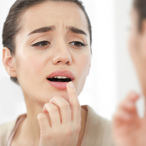 woman discovering canker sore