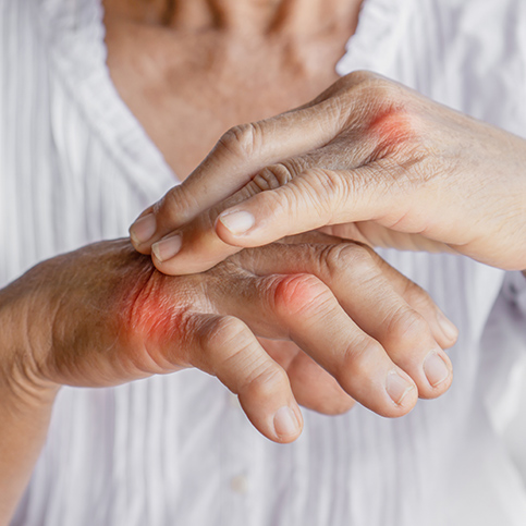person with hand pain caused by gout